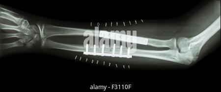 Broken Arm Ulnar Fracture with Fixation Surgery Stock ...