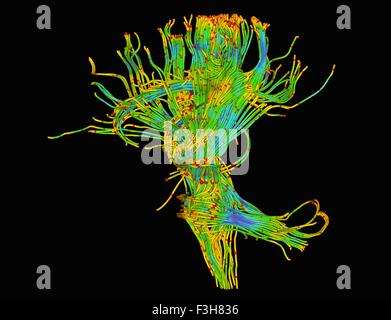 Diffusion MRI, also referred to as diffusion tensor imaging or DTI, of the human brain - Stock Photo