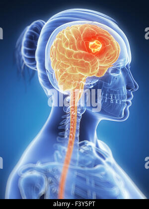 3d rendered illustration -  brain cancer - Stock Photo