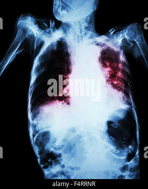 Pulmonary Tuberculosis with acute respiratory failure ( Film chest x-ray of old patient show alveolar and interstitial - Stock Photo