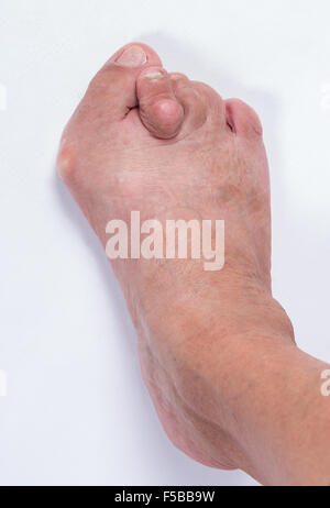 Foot of a woman with advanced stage bunion (Hallux abductus valgus) - Stock Photo