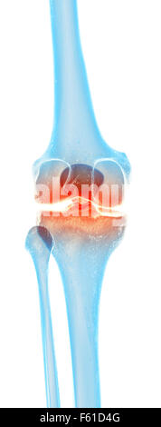 medically accurate illustration - painful knee - Stock Photo