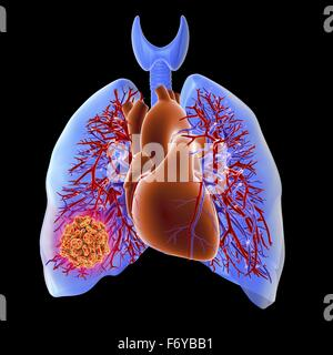 Circulatory system of heart and lungs, computer artwork, showing a thrombus in the right lung. This occurs when - Stock Photo