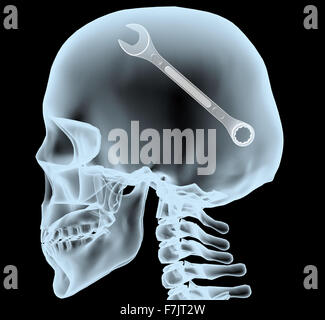 X-ray of a head with the wrench instead of the brain, 3d illustration - Stock Photo