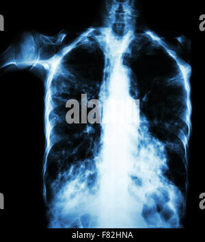 Pulmonary Tuberculosis  ( film chest x-ray :  interstitial infiltrate both lung due to Mycobacterium tuberculosis - Stock Photo