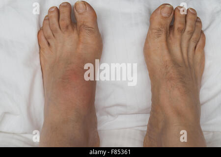 A pair of feet with the left foot inflamed and swollen with gout. - Stock Photo