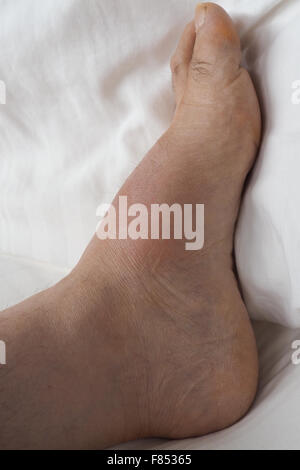 A swollen left foot with gout. - Stock Photo