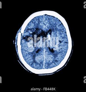 CT scan of brain : show old right basal ganglia hemorrhage with brain edema ( status post craniotomy ) ( Hemorrhagic - Stock Photo