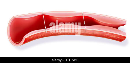 HIGH BLOOD PRESSURE, DRAWING - Stock Photo