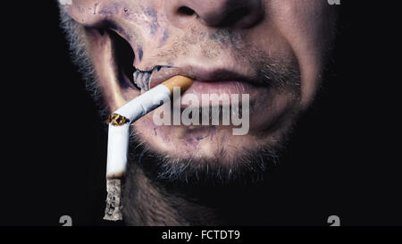 The rotten Face of a young Man stands for the Symbol of 'Smoking kills' - Stock Photo