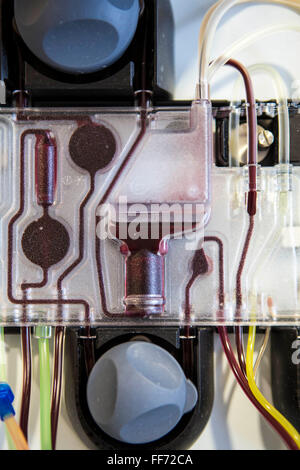 Medical transfusion equipment, called a cell separator, which collects human blood and separates it to collect stem - Stock Photo