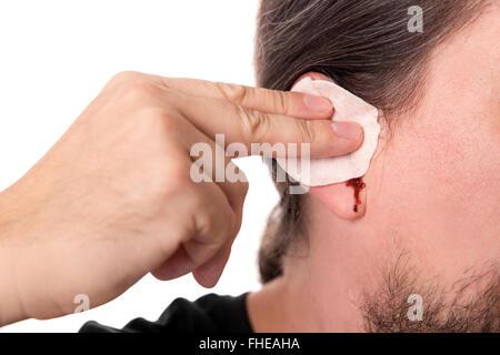 bearded man having ear bleeding, isolated on white, concept otitis media or otitis externe - Stock Photo