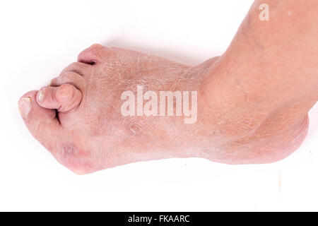 Advanced sample Hallux abductus valgus in an older woman - Stock Photo