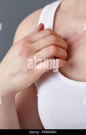 Cropped close up shot of young woman scratching her chest with fingers - Stock Photo