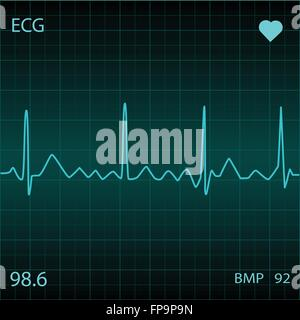 Blue Heart Monitor - Stock Photo