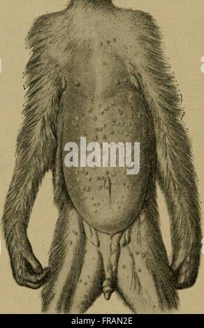 Die vergleichende Pathologie der Haut (1910) - Stock Photo