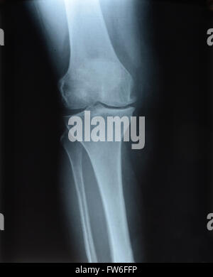 X-ray picture showing knee joints - Stock Photo
