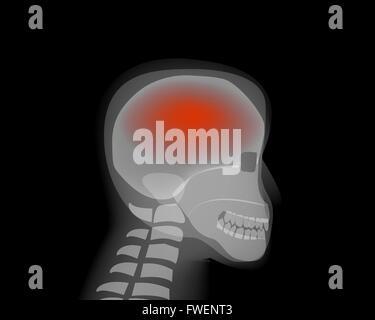 Headache,stroke, Brain Diseases,Alzheimer vector - Stock Photo