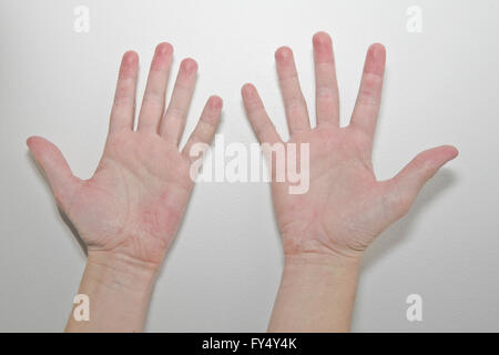 Male hands with eczema isolated on white background - Stock Photo