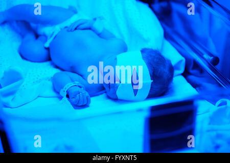 Newborn baby having photo theraphy - Stock Photo