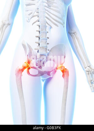 3d rendered illustration of painful hip joints Stock Photo ...