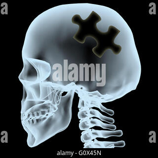 X-ray of a head with the jigsaw piece instead of the brain, 3d illustration - Stock Photo