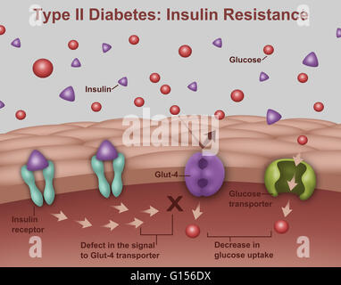 llustration of insulin and glucose production in Type 2 diabetes. Insulin (purple triangles) is produced by islet - Stock Photo