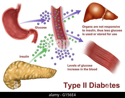 llustration of insulin and glucose production in Type 2 diabetes. Insulin is produced by islet cells in the pancreas, - Stock Photo