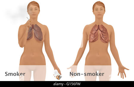 Illustration comparing the lungs of a smoker (left) to the lungs of a non-smoker (right). Smoking can result in - Stock Photo