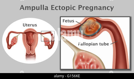 Illustration of an ampulla ectopic pregnancy; a fetus growing in the ampulla (the second portion of the fallopian - Stock Photo