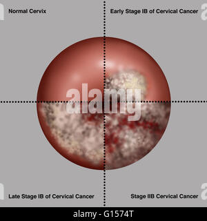 Illustration showing the progression of cervical cancer. Upper left section shows a normal cervix. Upper right section - Stock Photo