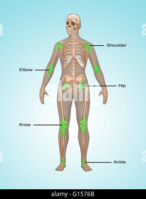 Illustration showing common places of pain and inflammation in the human skeleton. Joint pain is depicted in green - Stock Photo