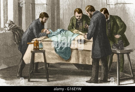 Lister's antiseptic spray in action during surgery. Sir Joseph Lister (1827-1912) was a British surgeon who pioneered - Stock Photo