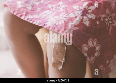 bandage plaster on a girl's injured knee - Stock Photo
