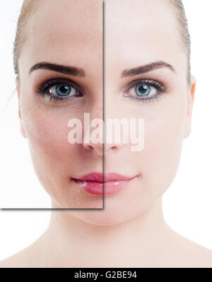 Portrait of attractive woman with problem and clean skin on white background - Stock Photo