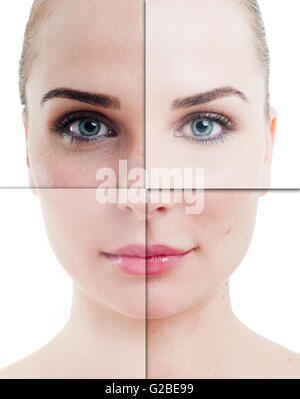 Woman face divided in parts with perfect and imperfect skin on isolated on white - Stock Photo