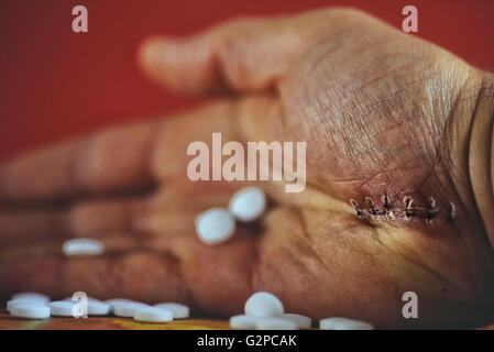 Man's hand holding medicine tablets. - Stock Photo