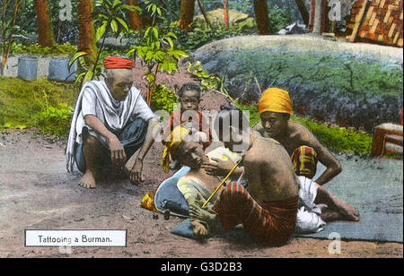 Myanmar - A man has his arm tattooed. The long tattooing stick has twelve very fine needles.     Date: circa 1908 - Stock Photo