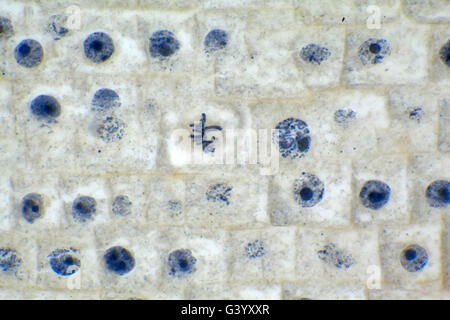 Brightfield photomicrograph, onion root tip, showing cell division - Stock Photo