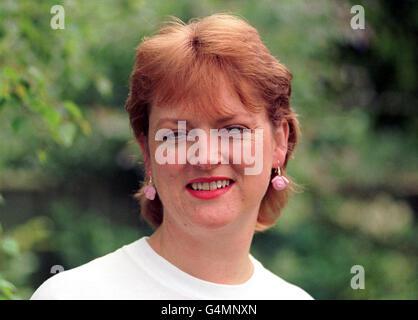 Pig's heart surgery/Sue Berry 2 - Stock Photo