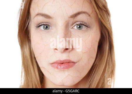 dry skin condition - Stock Photo
