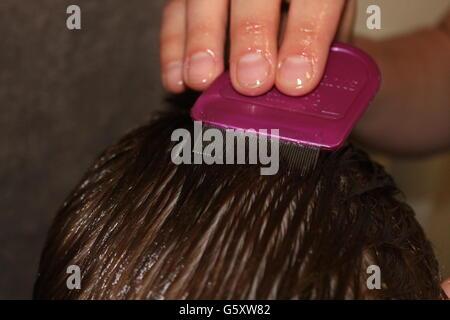 how to get rid of lice nits at home