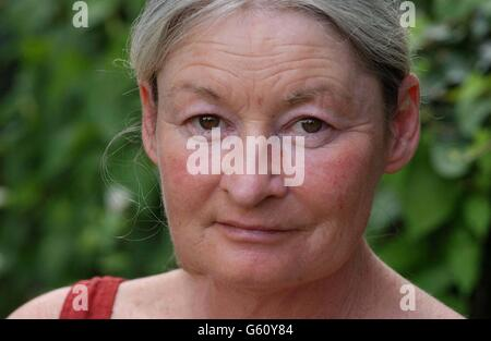 Amnesia Patient Makes Appeal - Stock Photo