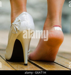 White high heel in one feet and other injured with white little patch. Feet on toe - Stock Photo