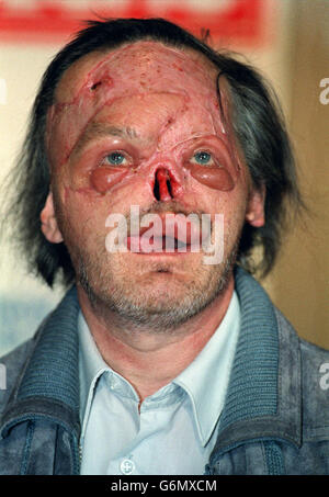 Frank Tempest attacked by two Pit Bulls - Stock Photo