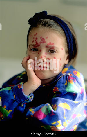 Little girl with chicken pox - Stock Photo