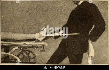 A practical treatise on fractures and dislocations (1912) - Stock Photo