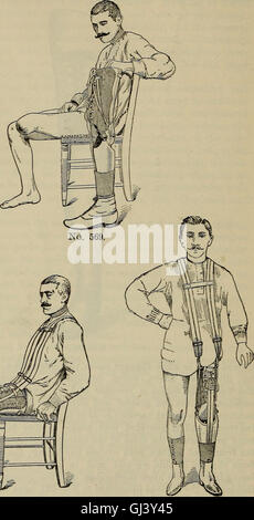A treatise on artificial limbs with rubber hands and feet (1901) - Stock Photo