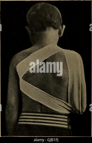 Minor surgery and bandaging, including the treatment of fractures and dislocations (1893) - Stock Photo