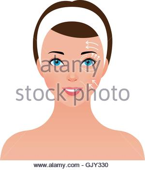Portrait of beautiful girl with perforations on the face for plastic surgery - Stock Photo